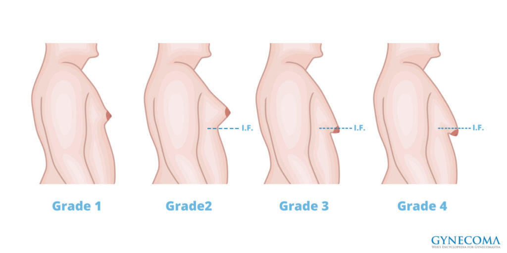 types-or-grades-of-gynecomastia