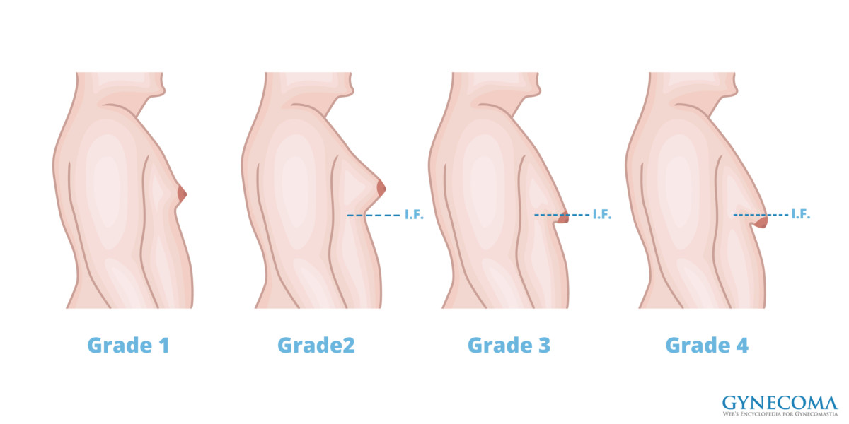 an overview of gynomastia Male breast reduction surgery,treatment of gynecomastia,tampa bay ,st petersburg, sarasota florida.